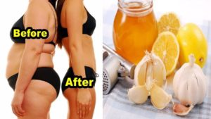 How to Properly Use Garlic and Lemon for Weight Loss Fast – No Strict Diet No Workout